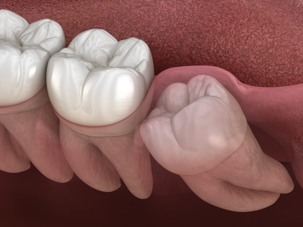 Impacted wisdom teeth Kitchener