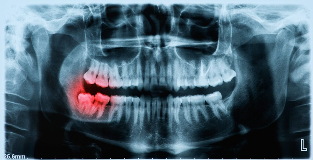 wisdom teeth removal kitchener