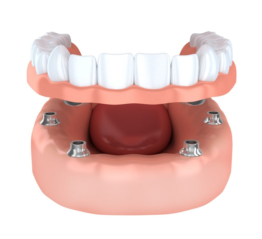 implant dentures in Kitchener