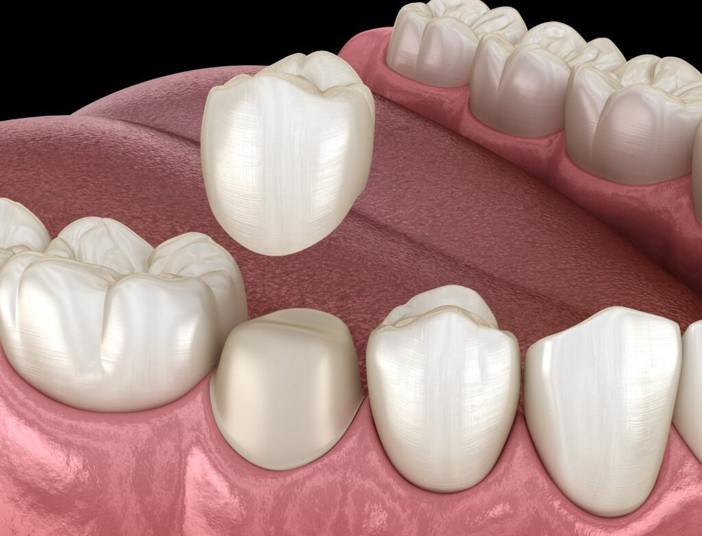 dental crowns near me