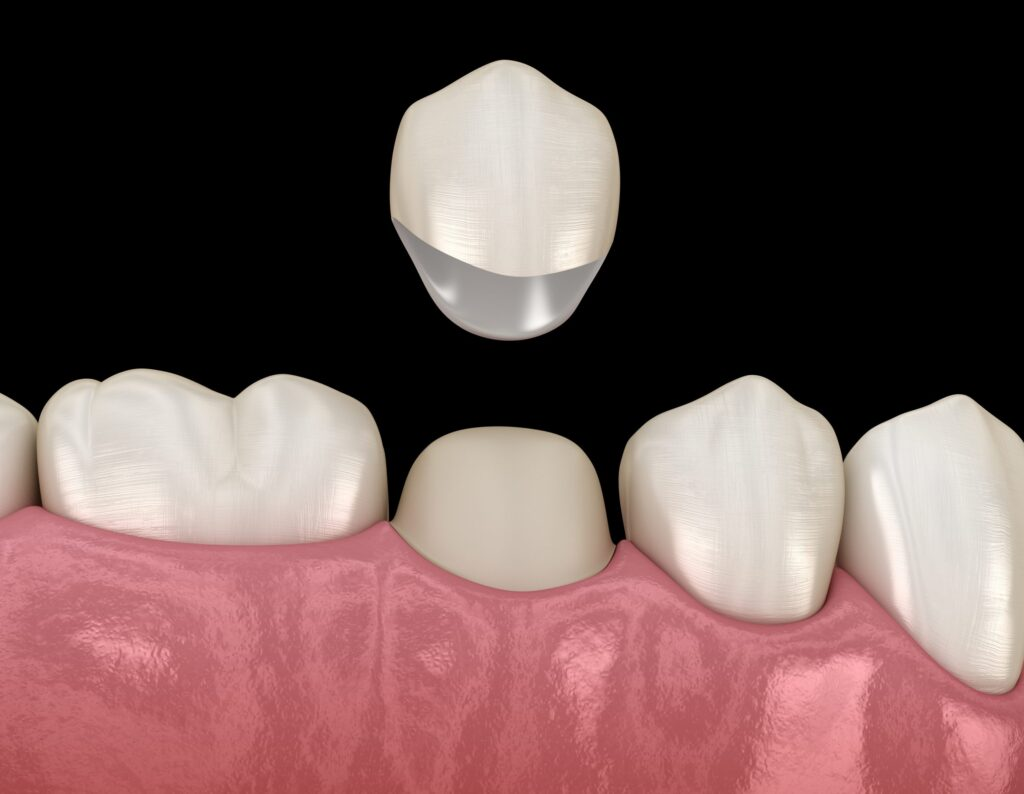 dental crowns in kitchener