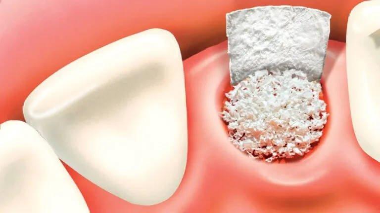 Bone Grafting for Dental Implants