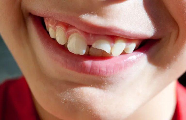 broke tooth